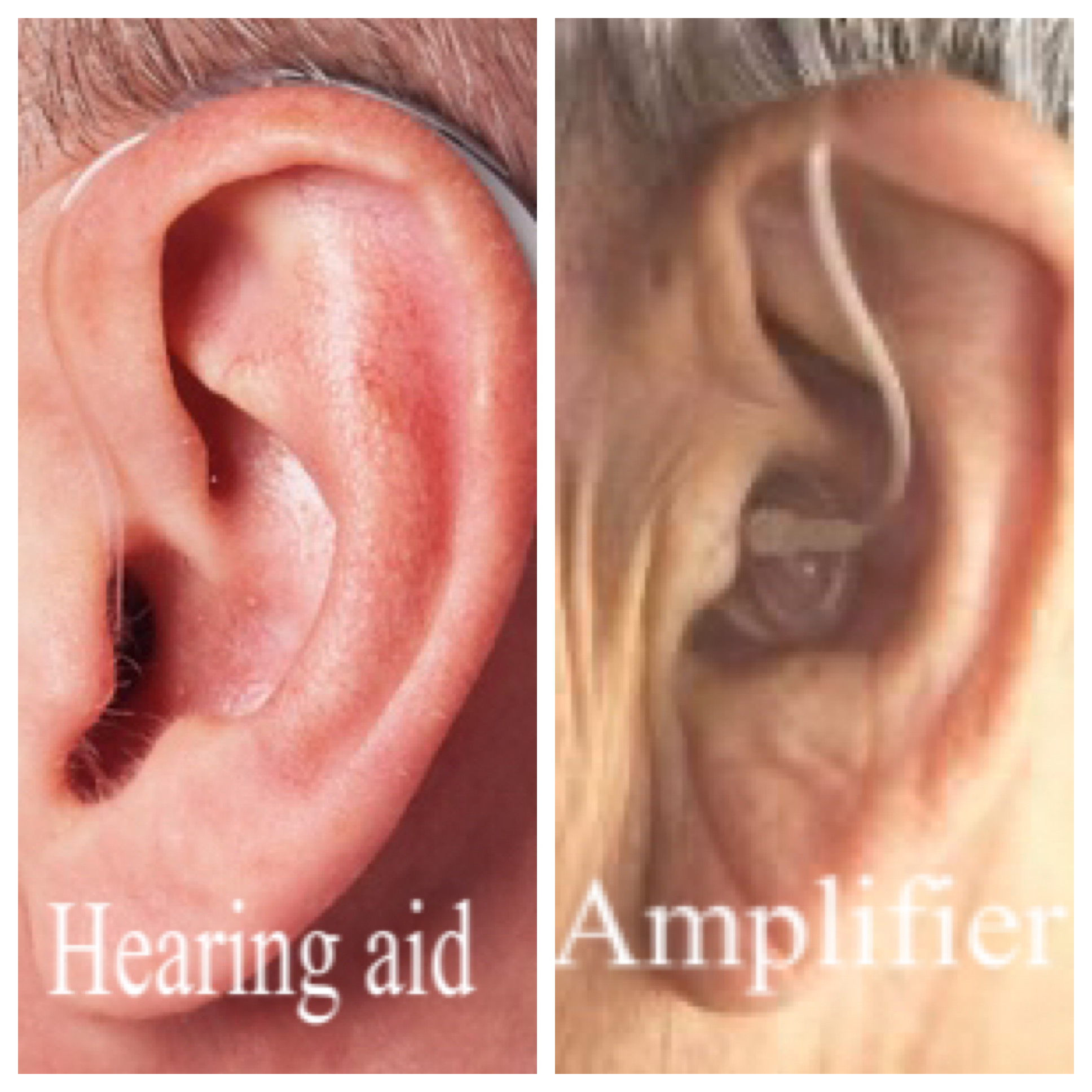 Hearing aid or psap